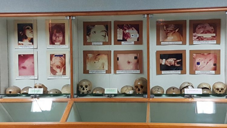 Witness the Dead Up Close at Siriraj Medical Museum